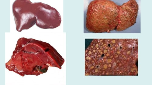 Cơ chế và điều trị cổ trướng trong xơ gan