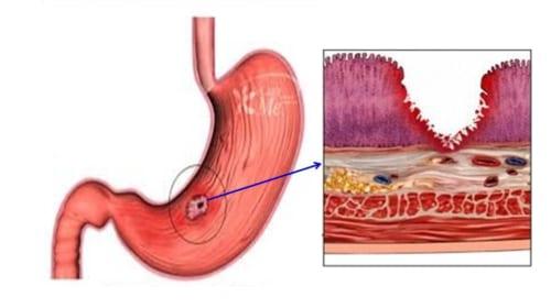Video sử dụng các thuốc điều trị loét dạ dày tá tràng
