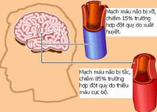 Triệu chứng và điều trị đột quỵ chảy máu não