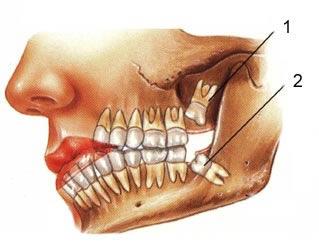 Tai biến mọc răng số 8