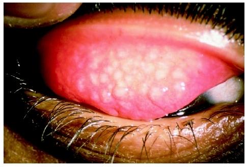 Triệu chứng và điều trị Bệnh mắt hột