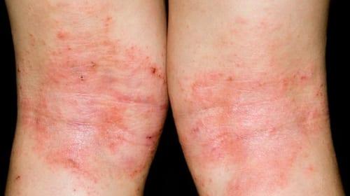 Triệu chứng và điều trị Bệnh Eczema (bệnh chàm)