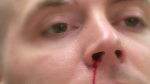 Nguyên nhân và điều trị chảy máu mũi