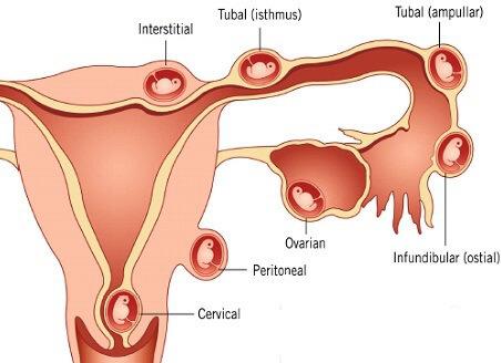 Triệu chứng và xử trí chửa ngoài tử cung