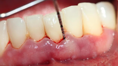 Viêm quanh răng