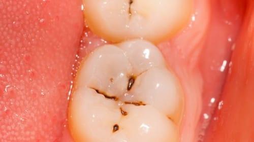 Triệu chứng và điều trị bệnh sâu răng