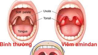 Triệu chứng và điều trị bệnh Viêm Amydan