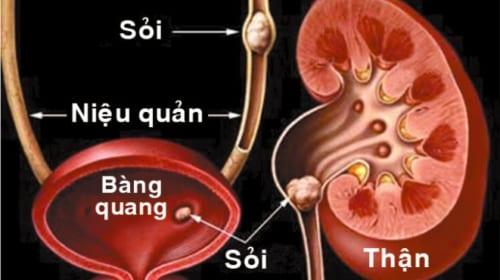 Triệu chứng và điều trị sỏi đường tiết niệu