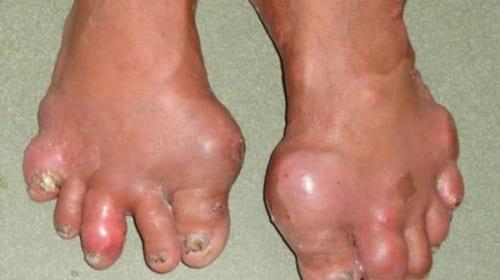 Triệu chứng và điều trị bệnh Gout