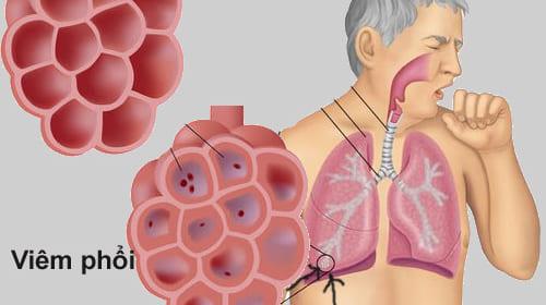 Triệu chứng và điều trị viêm phổi cấp