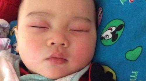 Tư vấn sức khỏe: Trường hợp đỏ xung quanh mắt khi sốt
