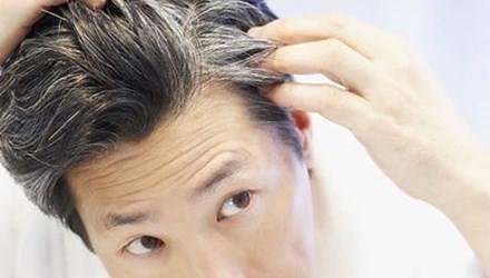 Bạc tóc sớm: Nguyên nhân và cách khắc phục