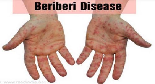Bệnh tê phù Beri - Beri do thiếu Vitamin B1