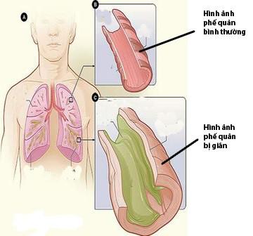Triệu chứng và điều trị bệnh giãn phế quản