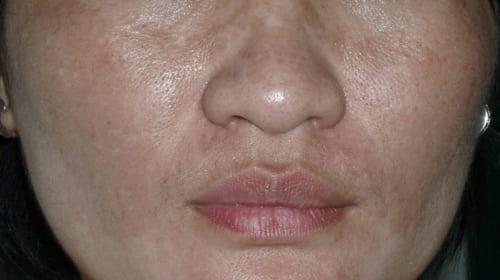 Triệu chứng và điều trị xạm da