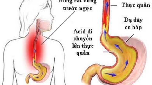 Triệu chứng và điều trị bệnh trào ngược dạ dày - thực quản (GERD)