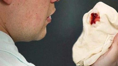 Cấp cứu ho ra máu