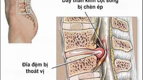 Triệu chứng và điều trị thoát vị đĩa đệm cột sống thắt lưng