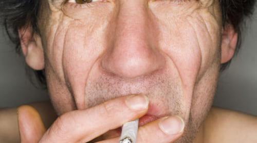 Vì sao da của những người hút thuốc lại hay nhăn?