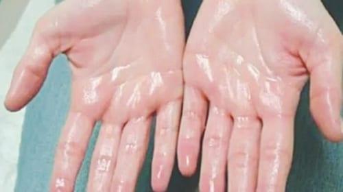 Chứng ra mồ hôi tay là bệnh di truyền