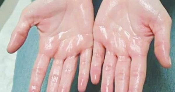 Chứng ra mồ hôi tay là bệnh di truyền - Yte123.com