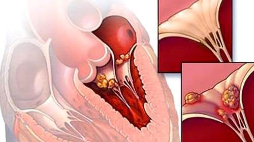 Triệu chứng, điều trị và dự phòng bệnh thấp tim
