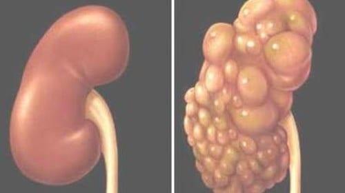 Tìm hiều về bệnh thận đa nang người lớn