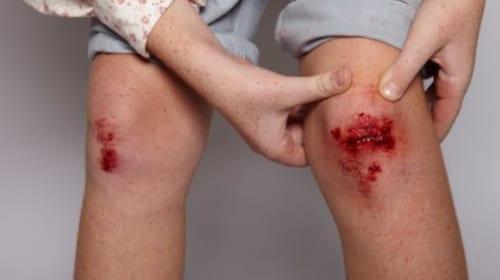 Làm thế nào để vết thương nhanh lành sẹo?