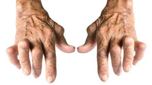 Điều trị viêm khớp dạng thấp bằng thuốc sinh học (Entanercept)