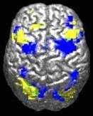 Một bộ não con người nhìn từ trên xuống. Khoảng 10% been marked màu vàng and 10% màu xanh lam. Only one (might 0,5%) khu vực màu xanh lá cây nhỏ nơi they chồng chéo lên nhau.
