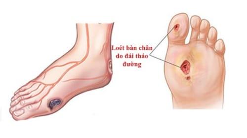 Phục hồi chức năng bàn chân cho người bệnh tiểu đường
