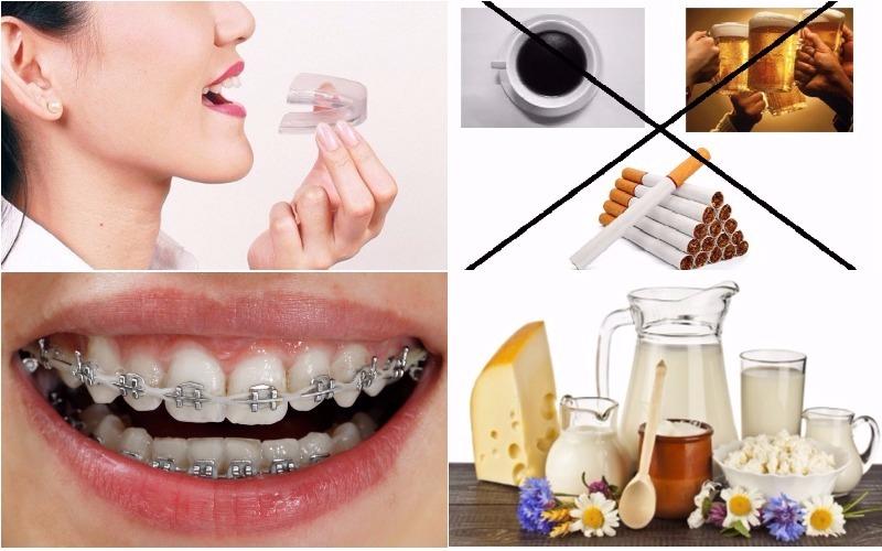 Phương pháp phòng ngừa điều trị nghiến răng