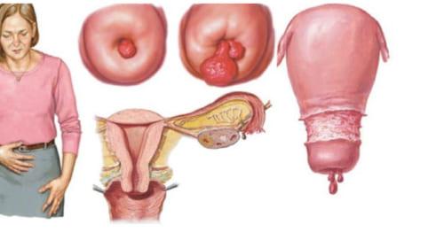 Polyp cổ tử cung là gì?
