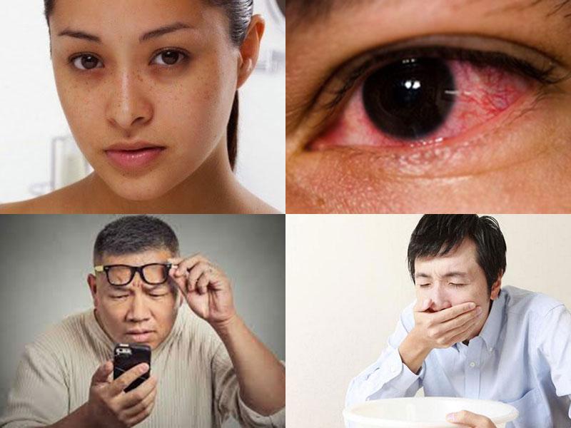 Triệu chứng của tăng nhãn áp