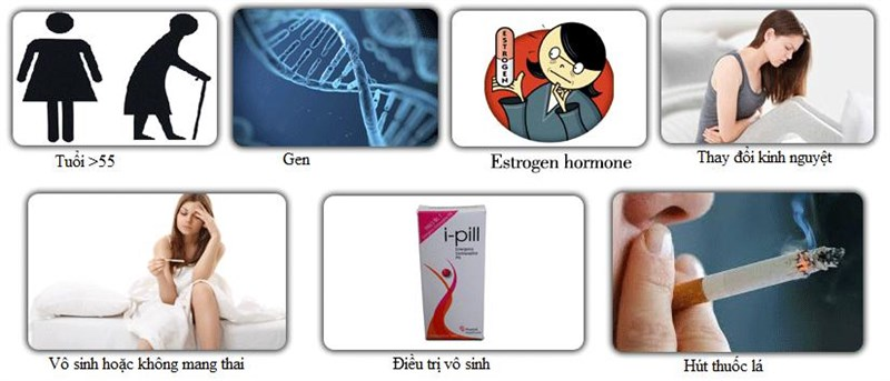 Các yếu tố nguy cơ của ung thư buồng trứng