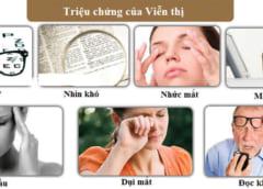 Triệu chứng của viễn thị