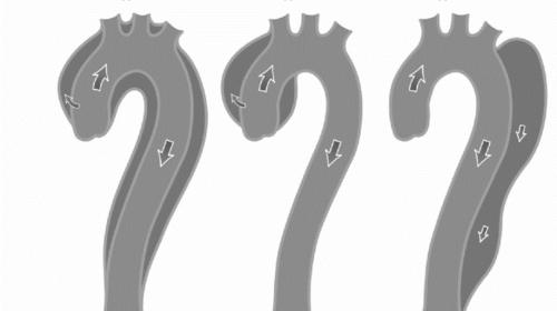 CẤP CỨU TIM MẠCH : HỘI CHỨNG ĐỘNG MẠCH CHỦ CẤP