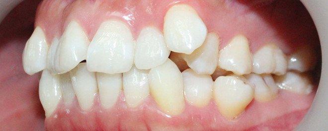 Những trường hợp lệch răng cần phải đến nha sĩ