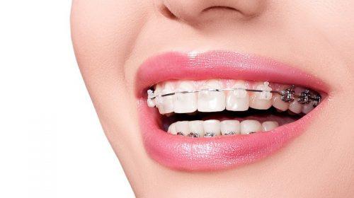 Độ tuổi lý tưởng để niềng răng