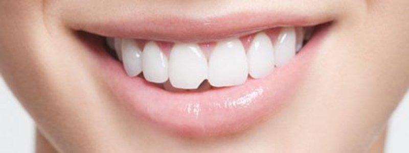 răng sứ bị mẻ