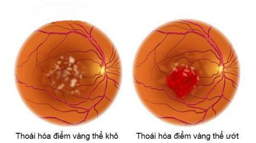 Các bệnh về mắt thường gặp ở người lớn tuổi