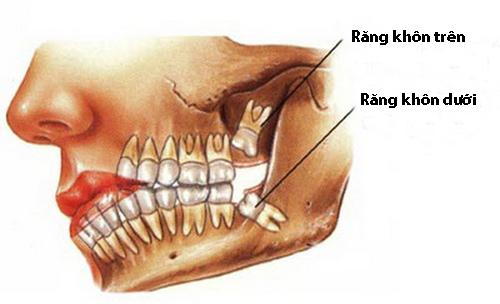 Mọc răng khôn hàm trên bị lệch phải làm sao? 1