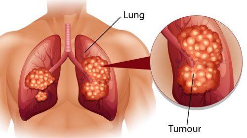 Ung thư phổi: Nguyên nhân, triệu chứng, chẩn đoán và điều trị
