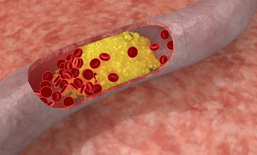 Điều trị mỡ máu cao: Những điều cần biết | Vinmec