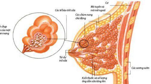 Một số điểm quan trọng trong kết quả giải phẫu bệnh ung thư vú