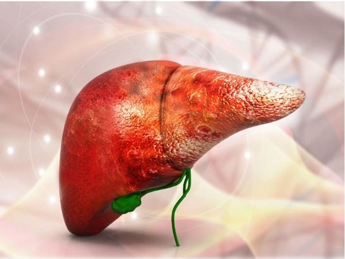Cách nhận biết ung thư gan giai đoạn đầu và điều trị bệnh hiệu quả