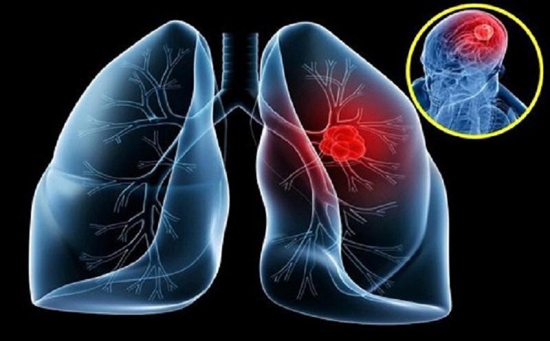 Bệnh ung thư phổi có chiều hướng gia tăng, di căn nhanh chóng