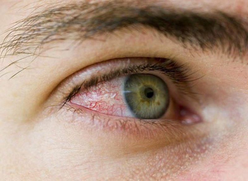 Bệnh viêm kết mạc mắt: Nguyên nhân, triệu chứng, cách điều trị và phòng  tránh | Vinmec