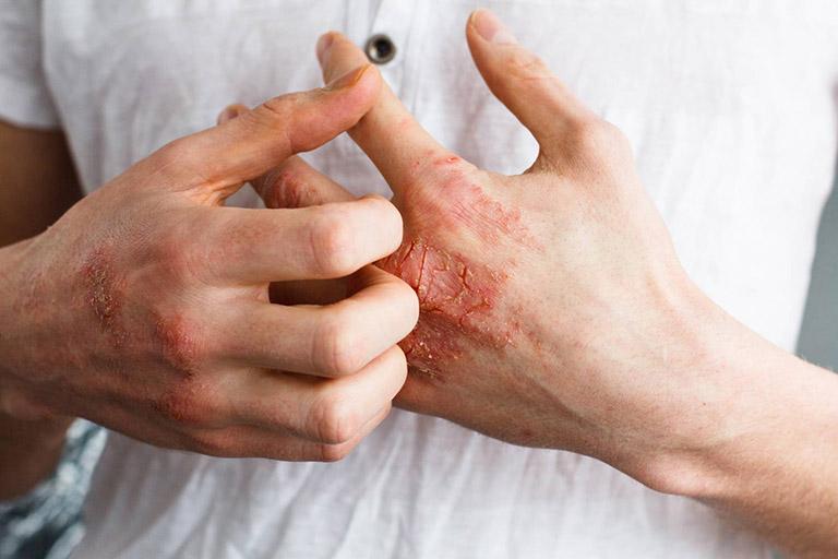 Bệnh giang mai là gì? Nguyên nhân, Triệu chứng, Cách điều trị