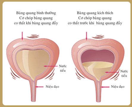 Chẩn đoán và điều trị viêm bàng quang cấp - Sỏi tiết niệu